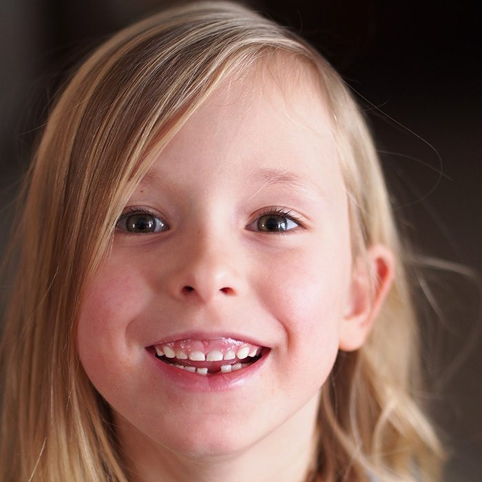 Girl Smiling and missing tooth.