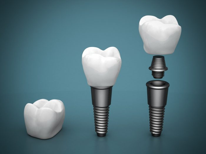 where can i find the best implant dentist in tampa fl near me?